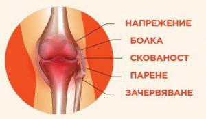 signes de douleurs articulaires
