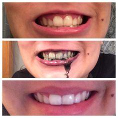 résultats de denta black