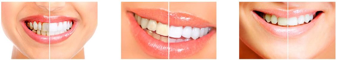 effet de bandes blanches dentaires