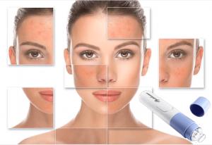 Aspirateur de visage, une femme avec des problèmes de peau du visage