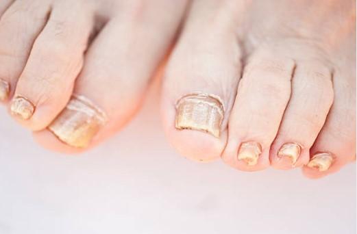 pieds, ongles, champignon, infection fongique