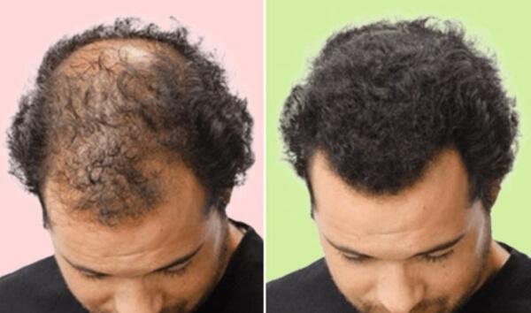 masque d'effets pour la croissance des cheveux