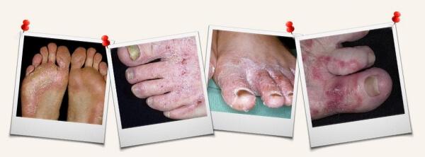 les infections fongiques