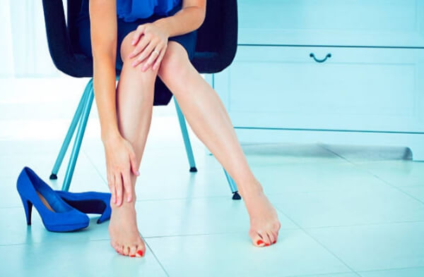 jambes, femme, chaussures, varices, varices