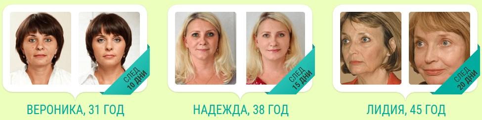 résultats avant et après procollagène
