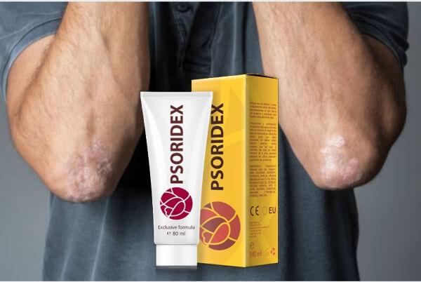 Psoridex, crème, psoriasis