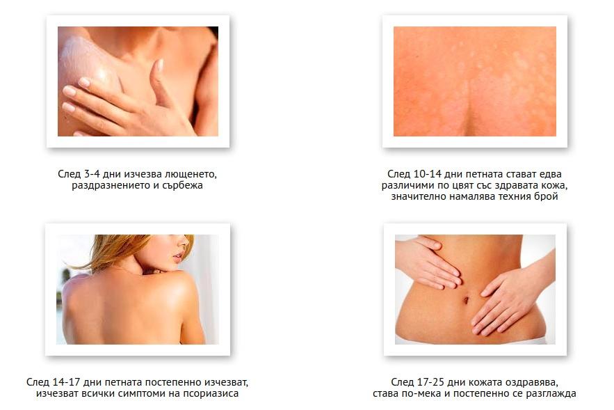 Exemples de problèmes de peau - Épaule, poitrine, abdomen, dos