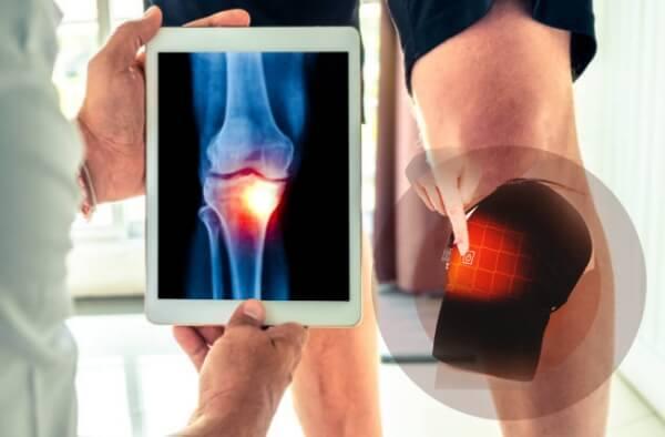 thermafix genou, douleur au genou, scanner