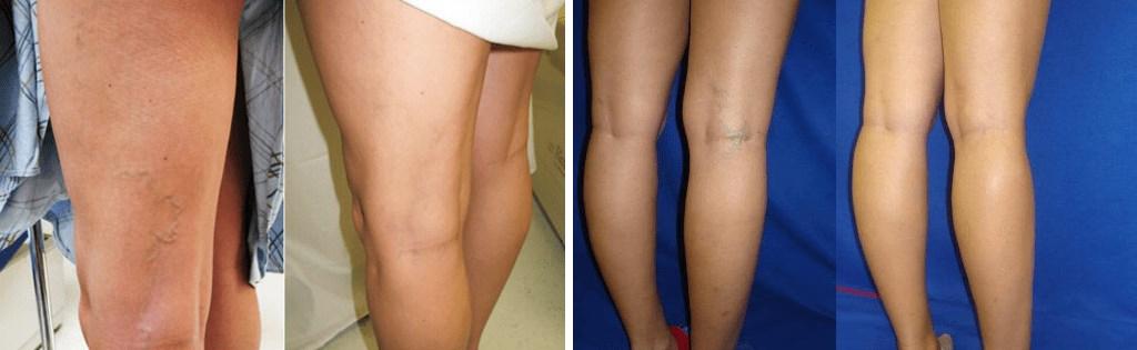 Les varices sur les jambes - le résultat de la crème contre les varices